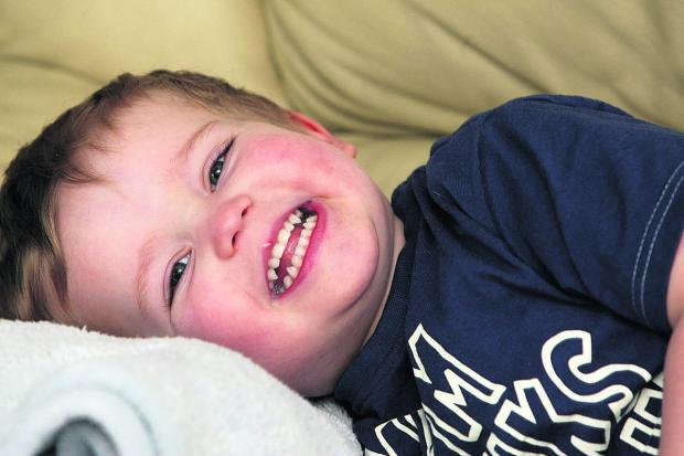 Two-year-old Kieran Lower, who had the operation to fix his tongue