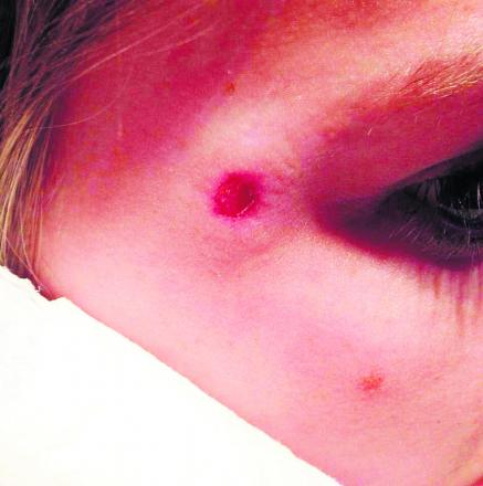 The girl who was injured by the BB gun