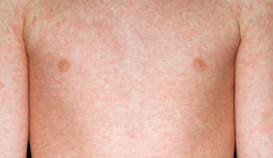 The distinctive measles rash. Picture: PHE